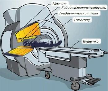 Магнитно-резонансный томограф (МРТ) - принцип работы